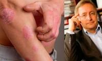 Lupénka není jenom onemocnění kůže